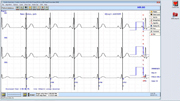 Holter ScreenShot